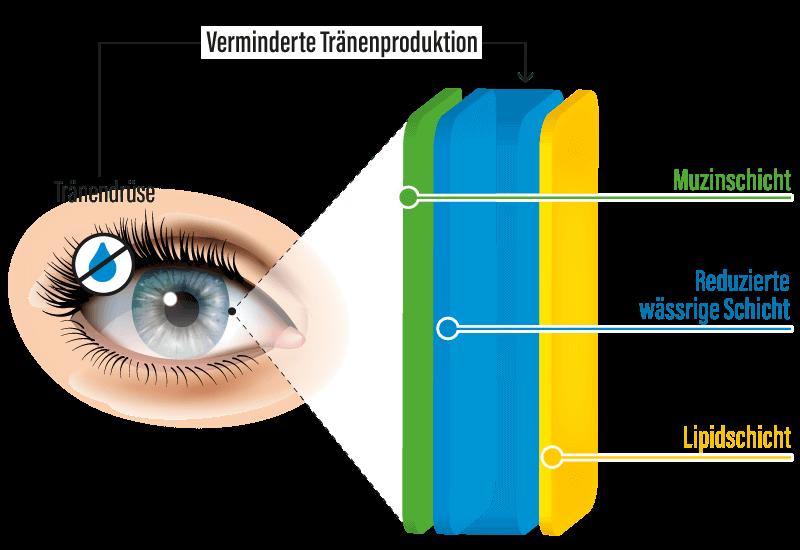 VerminderteTränenproduktion